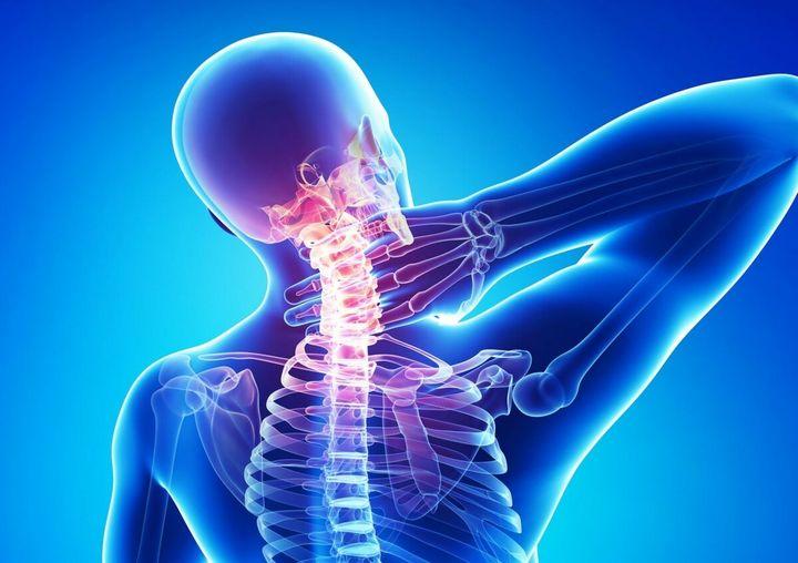 Что делать, чтобы остановить шейный остеохондроз? 1